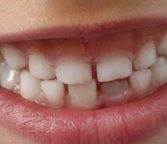 dental program